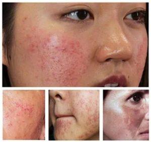 làn da bị nhiễm Corticoid nặng