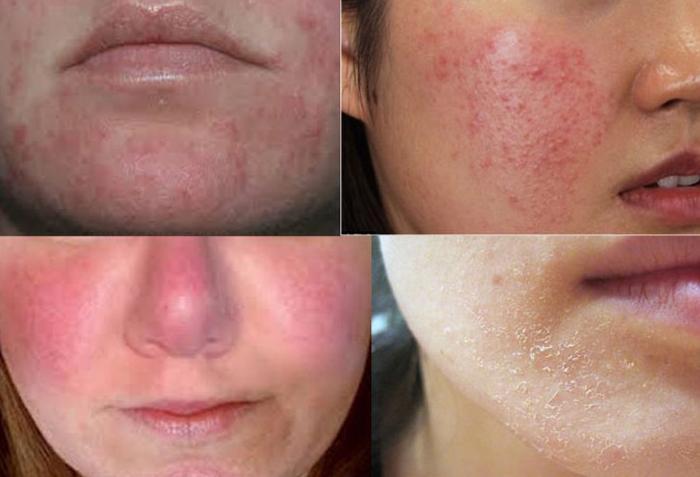 làn da bị nhiễm Corticoid